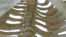 Marianne au labo : une molécule dérivée de la vitamine D pour améliorer la guérison des fractures.