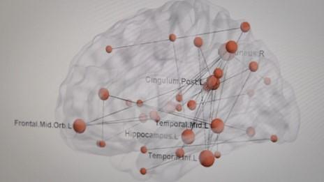 La réalité derrière l'état de stress post-traumatique